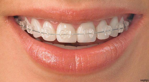 Diş teli hakkında bilinmesi gerekenler