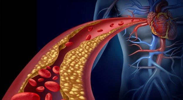Kolesterol Nedir? Tedavisi Nasıl Olur?