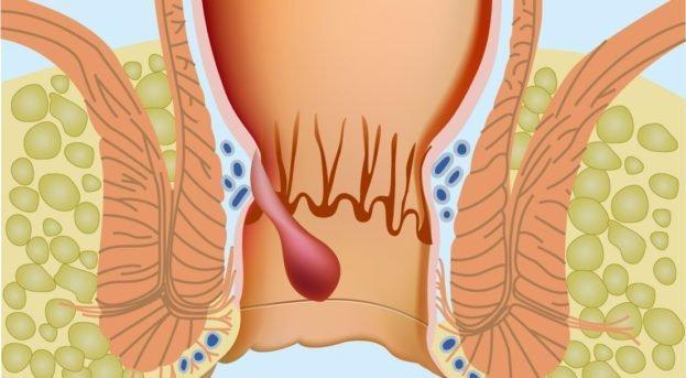 Basur (Hemoroid) Nedir? Belirtileri ve Tedavisi