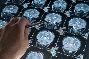 Alzheimer Tanisi Beyin Tomografisi Sonucu Ortaya Çıkar