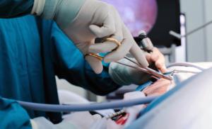 Apandisit Tedavisinde Tek Çözüm Ameliyattır.