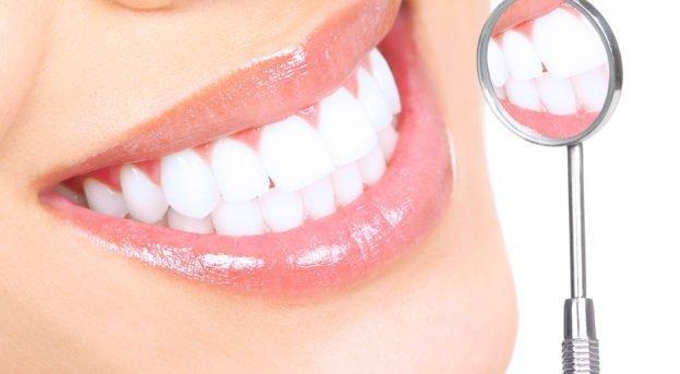 Diş beyazlatmada bilinmesi gerekenler