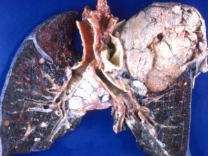 akciger-kanseri-ornegi