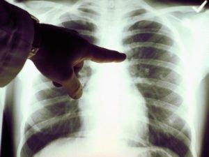akciğer kanseri tanısı