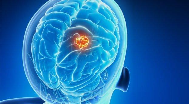 Beyin Tümörü Nedir? Belirtileri, Tanısı ve Tedavisi