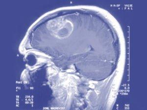 Beyin Tümörü Tanısı