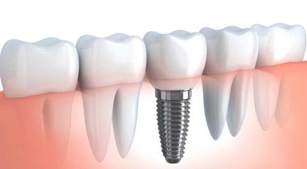 İmplant ve implant destekli sabit protezler