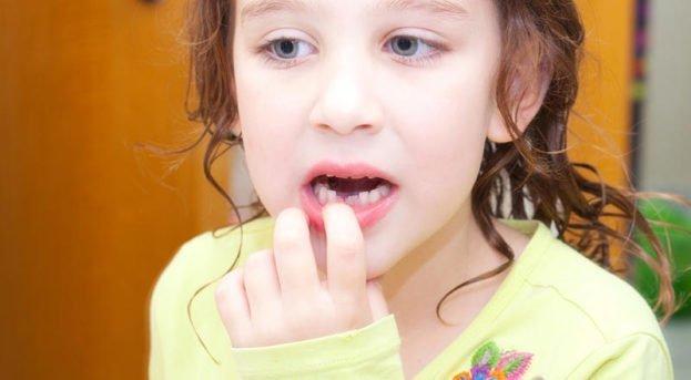 Süt dişleri tedavi edilmese olur mu?